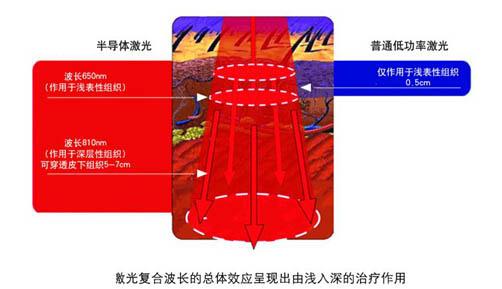 半导体激光组织穿透示意图